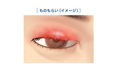 何 治る で 時間 腫れ の 目